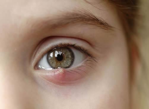 Tratamentos de Enfermidades Oculares em Curitiba